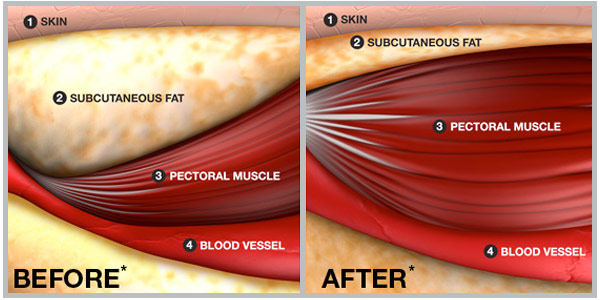 in subcutaneous fat levels before and after the SUB•Q cycle